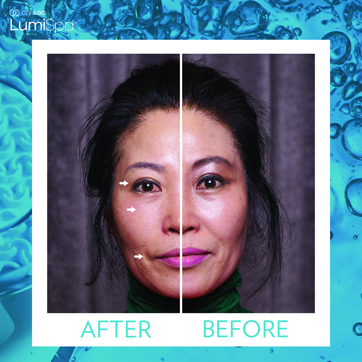 Results after 2 minutes use with the Lumispa