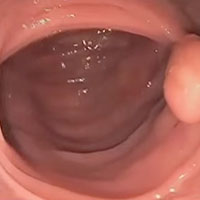 Clean colon wall, without visible mucoid plaque