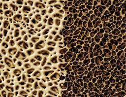 Calcium-poor bone matrix