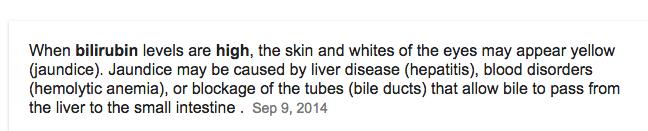 Source: Mayo Clinic.
