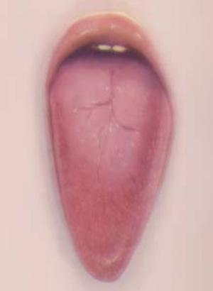 3 Pat Brassington: Under our skin: HEATHER ROSE   Pat Brassington,  Bloom , 2003, pigment print; image courtesy the artist, Arc One Gallery, Melbourne and Stills Gallery, Sydney