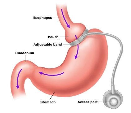 The virtual gastric band hypnotherapy protocol for Adelaide residents to lose weight fast.