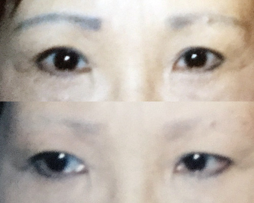 Discolored Eyebrow Tattoo Removal 퍼런눈썹 문신 제거