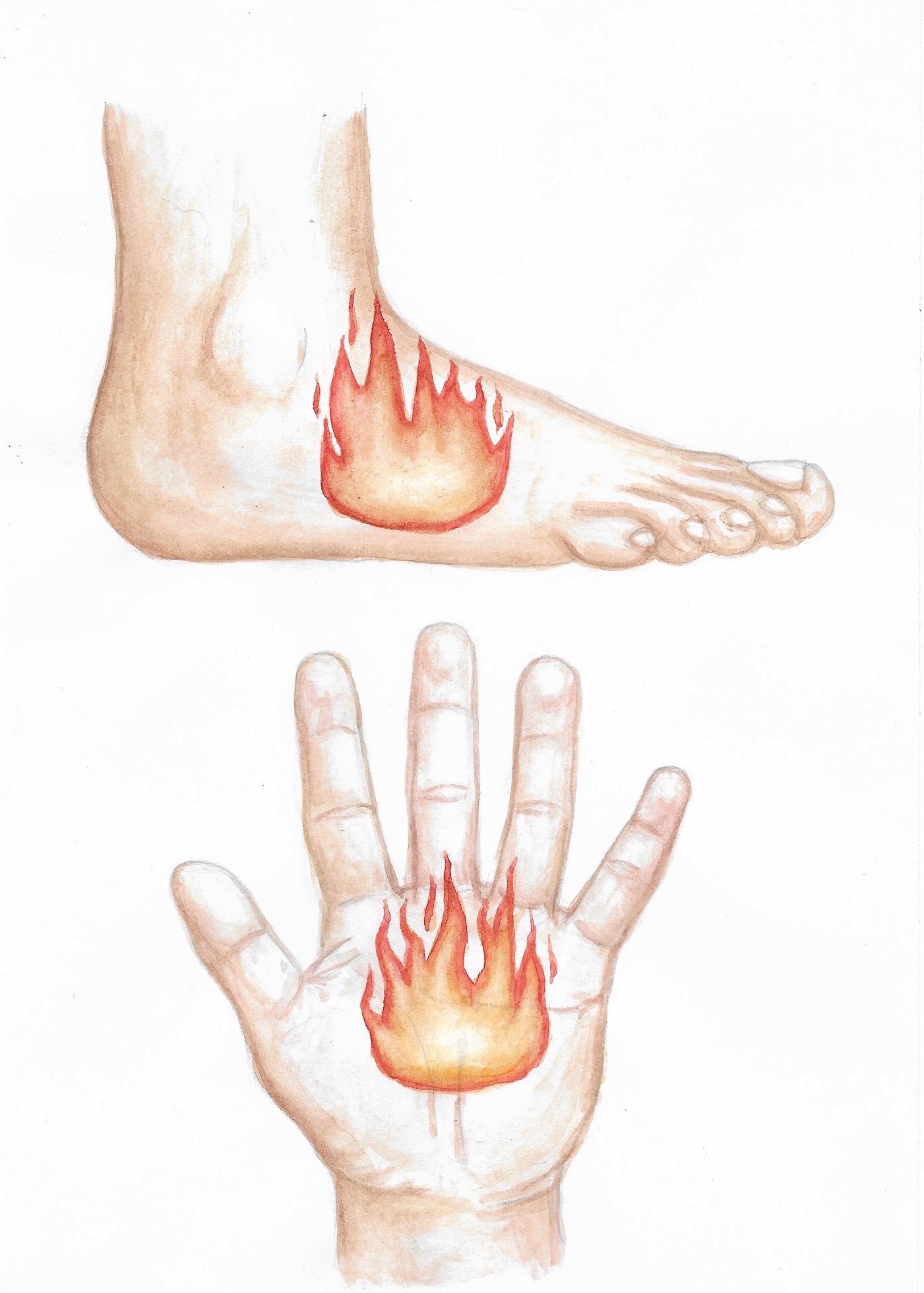 "Medical illustration of hand and foot burning sensation. Watercolor and pencil on Canson mixed media paper. 10x7.""  2018."