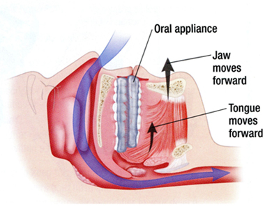 The diagram above illustrates how an oral appliance when worn during sleep opens the airway by positioning the jaw forward.
