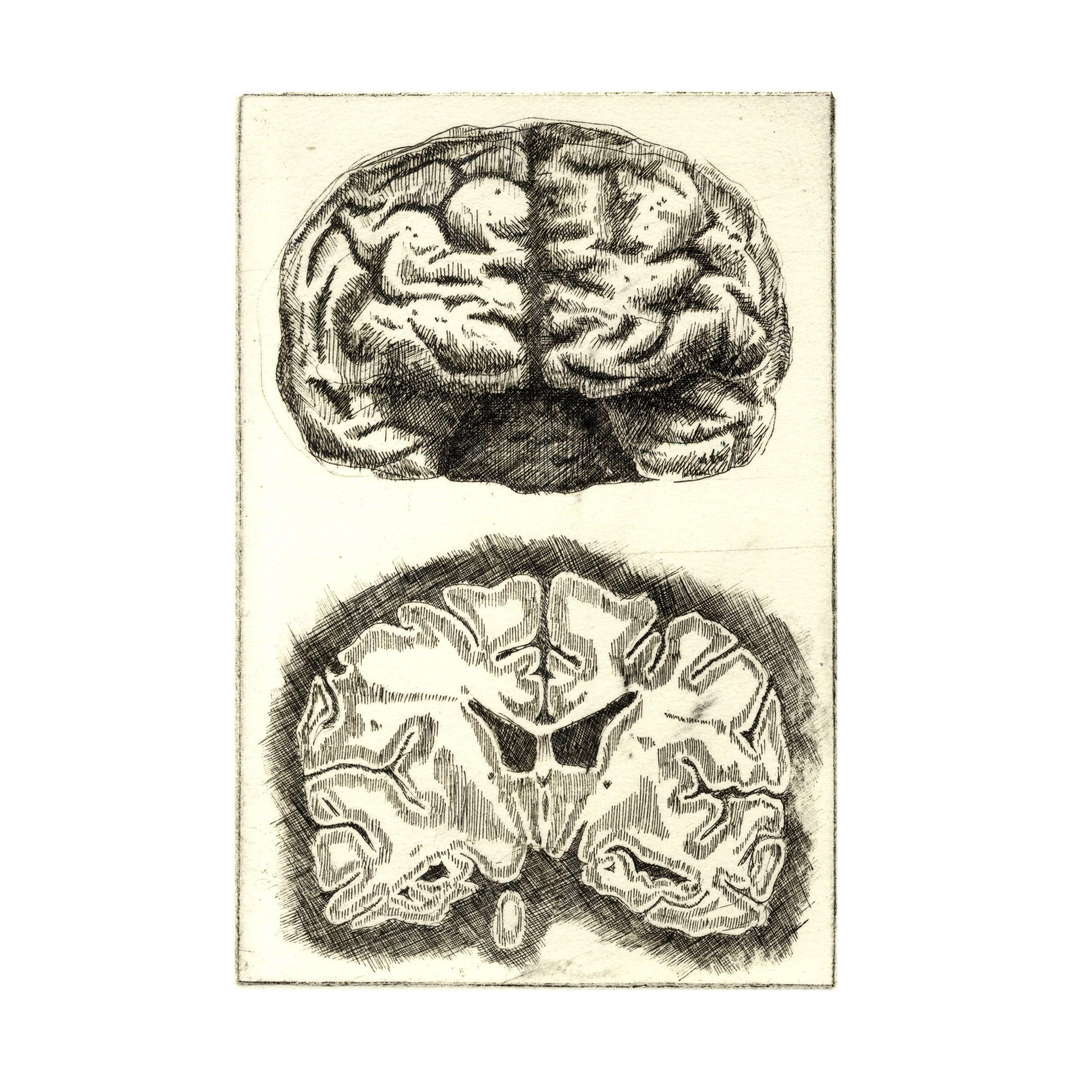 'Anatomical Study- Brain 1'