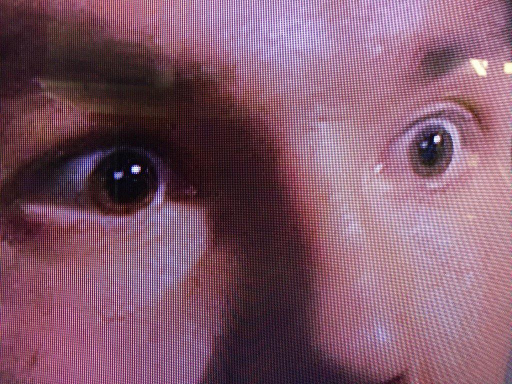 sam bradford eyes.jpg
