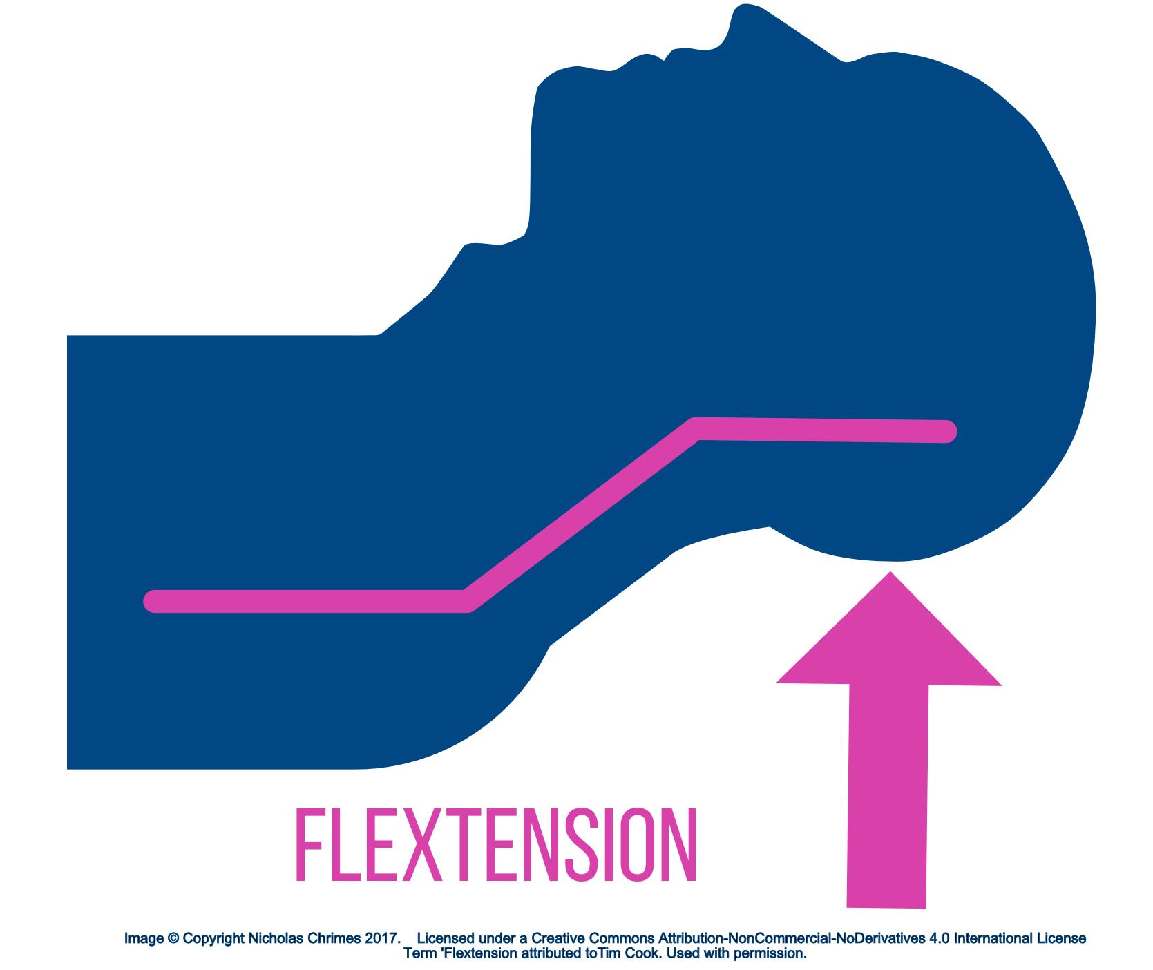 Flextension.jpg