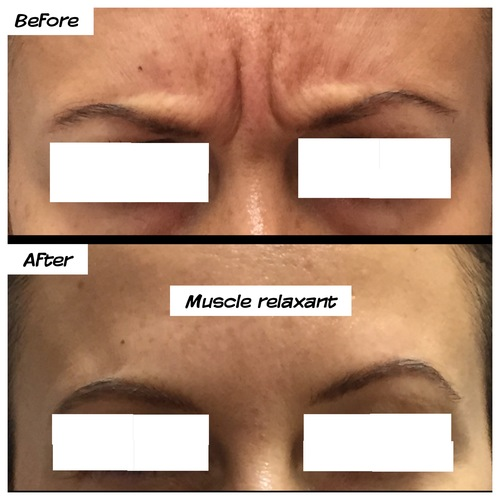 muscle relaxant between eyebrows before and after