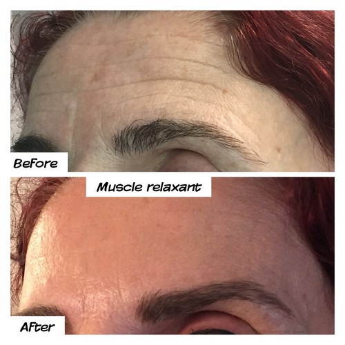 anti-wrinkle injections on forehead before and after