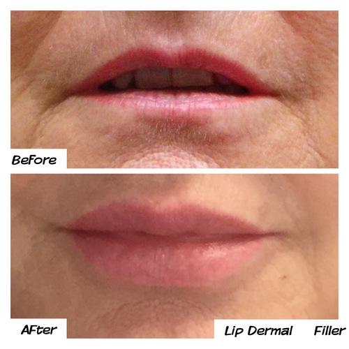 Natural lip filler look before & after dr mj melbourne