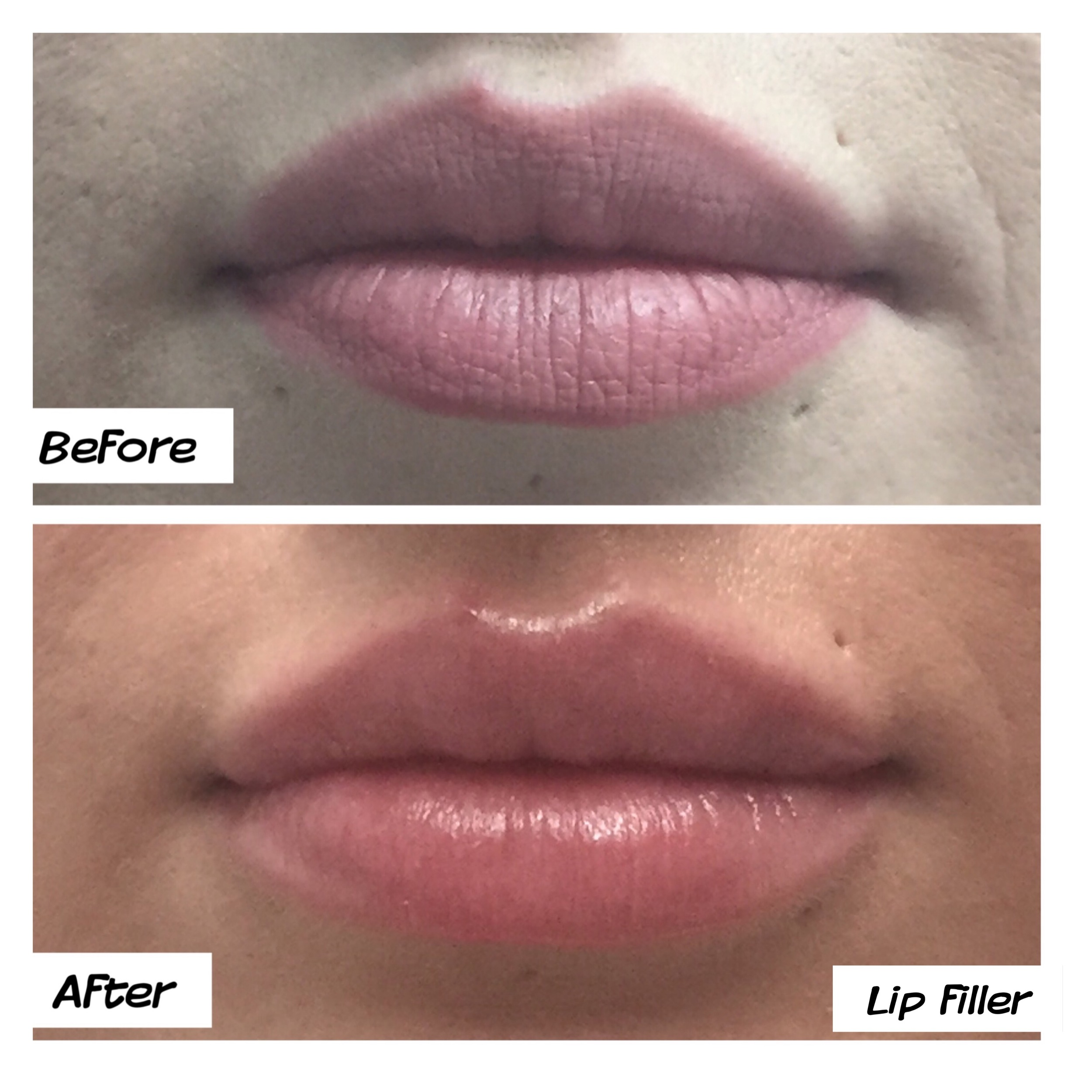 Top & bottom lip filler natural look dr mj melbourne