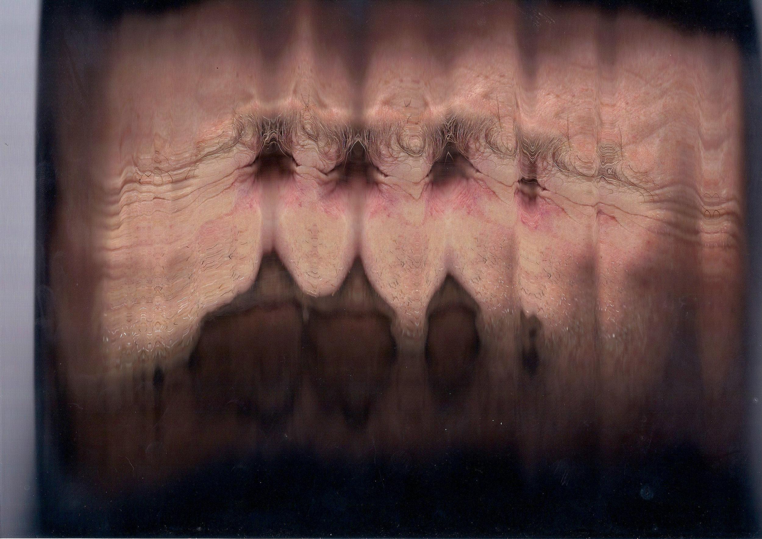 facial scan