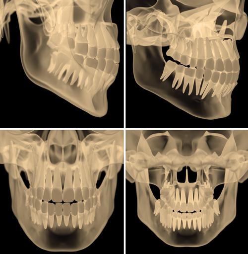 Kwon Family Dentistry, 3D Imaging
