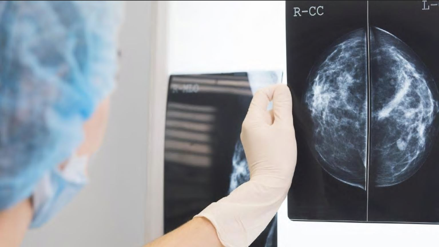 New Melbourne research has created sharper and more detailed images of mammograms that will improve breast cancer screening.