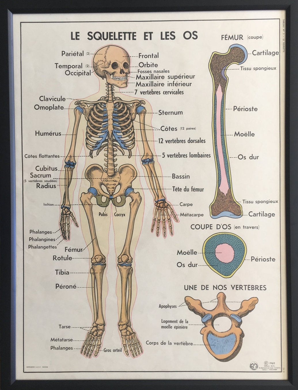 FRAMED Vintage French Medical Anatomy Education Poster- Skeleton and Bones