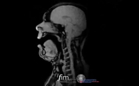 opera singer Michael Volle MRI