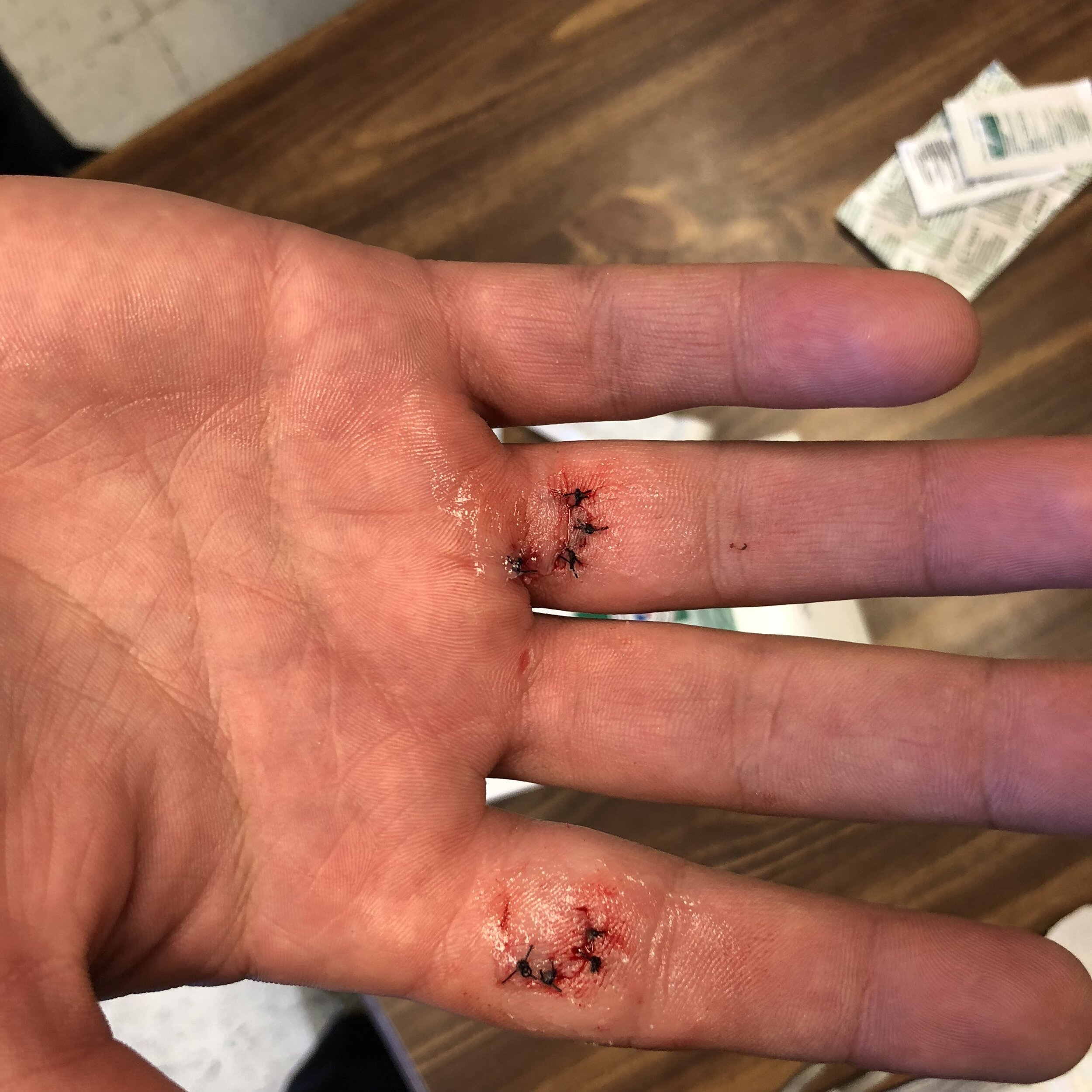 Our patient cut his hand aka had a laceration, and we were able to sew up the cut (suture the wound) about 20 minutes after the incident happened. This can ensure that healing is optimal and scar tissue is minimal.