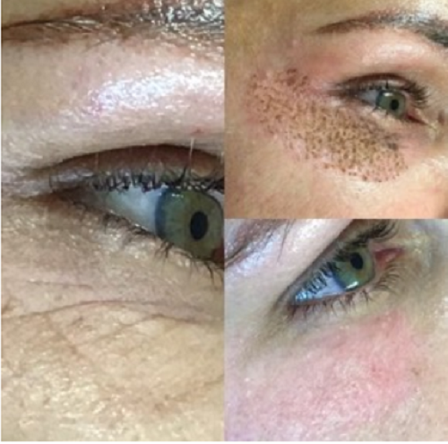 Before, Immediately After, and 6 Days later. Skin continues to heal and tighten for 5 weeks.