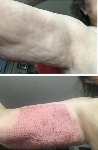 Upper Arm Skin Tightening. Immediate tightening affect of crepey skin