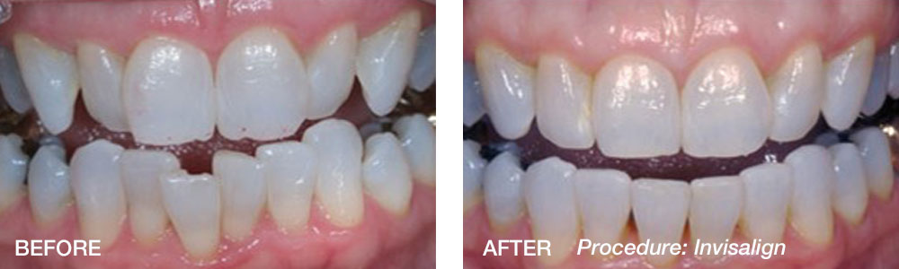 Invisalign-Before-After-Weiss.jpg
