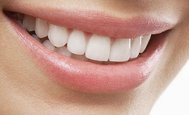 Smiling with Veneers