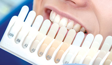Showing teeth whitening options