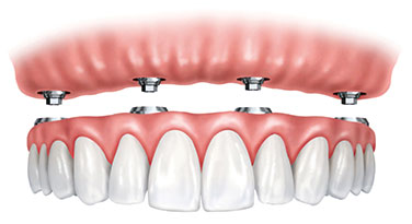Illustration of partials and dentures