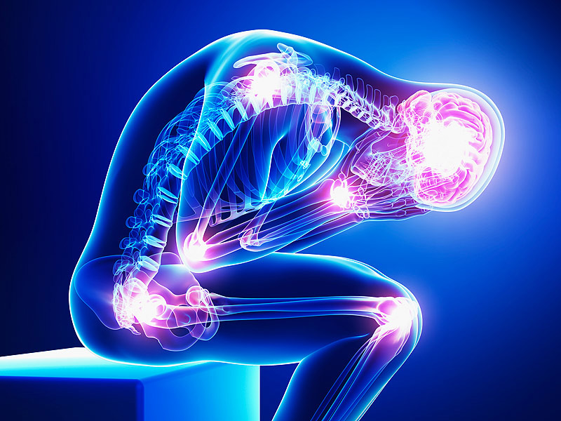 Fibromyalgia can cause constant pain, each day choosing a different set of muscles to torment