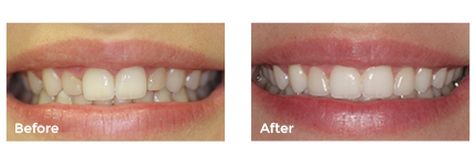 Before and afters4.jpg
