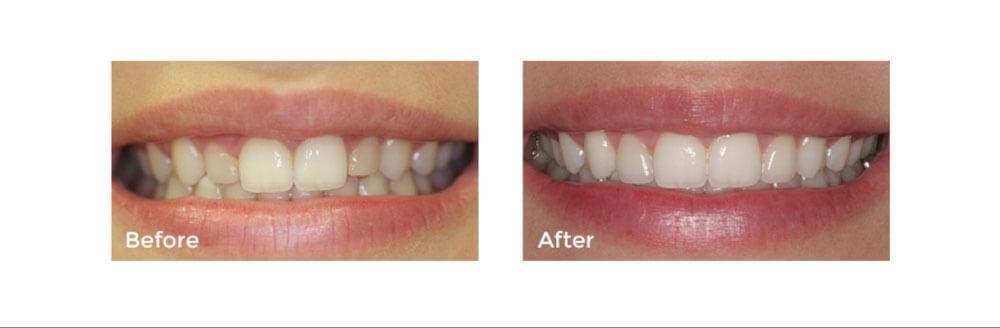 Cosmetic Dentistry: Dental Veneers