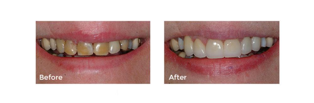 Tooth Repair: Anterior Crowns