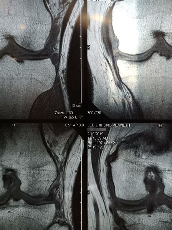 right knee MRI