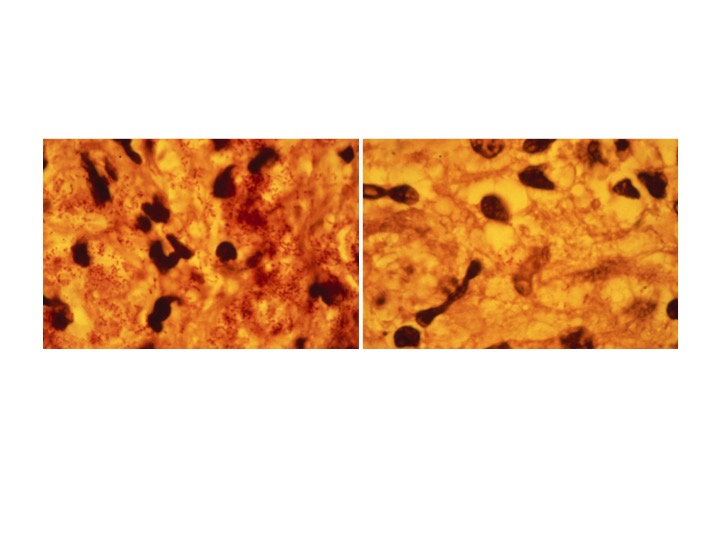 Lepromatous leprosy showing bacilli in macrophages infiltrating the skin (left), and 6 days after injection of interferon-γ (right) (NEJM 1986).