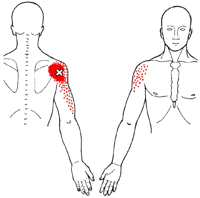 posterior-capsule-trp.jpg
