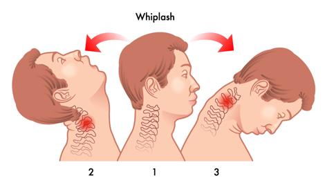 How do you get a whiplash