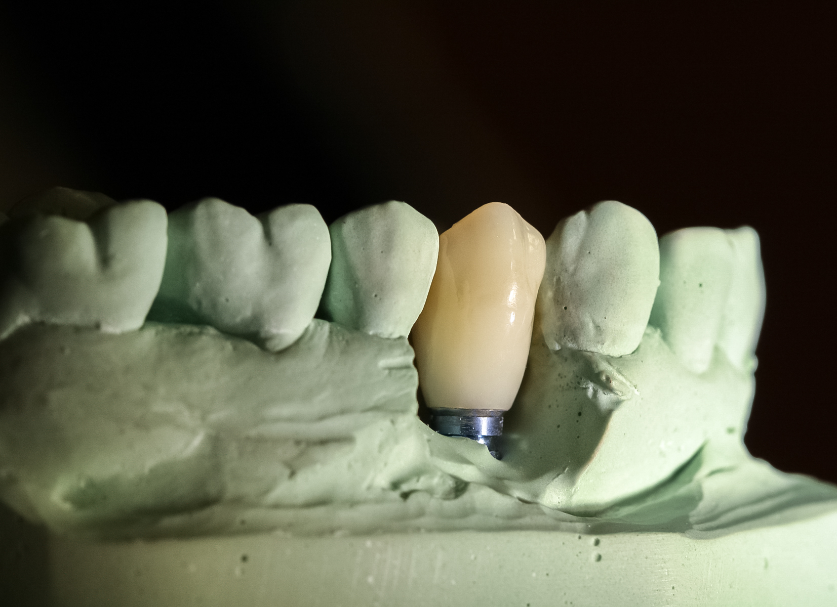 Implant Restoration  on the master cast prior to placement. Implant cases are typically done over 8 appointments after the initial screening, comprehensive examination, and treatment planning appointment.