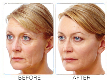 liquid facelift before after 1