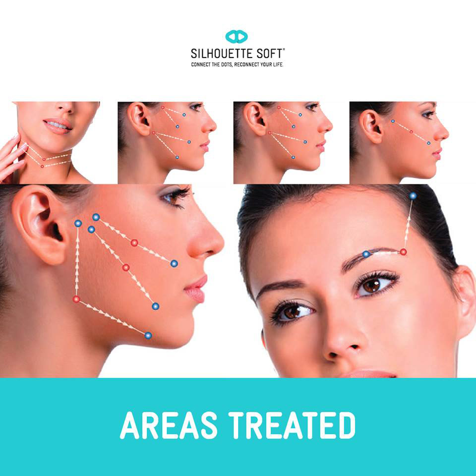 SILHOUETTE INSTALIFT ™  - The Newest Non Surgical Procedure to Lift Sagging Facial Skin. What does this new minimally-invasive technique mean to you? It means an immediate actual LIFT that does not require surgery.In one simple, short office procedure of about 45 minutes, you can walk out looking decades younger*!