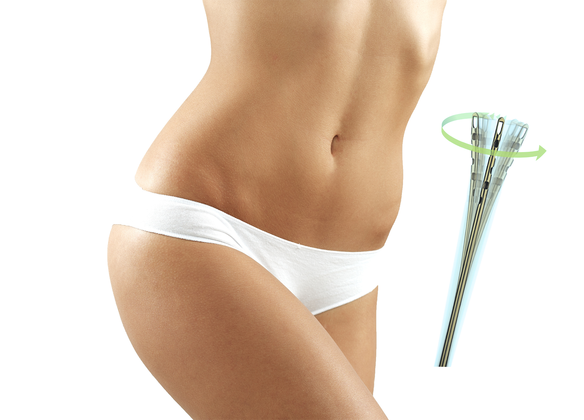 Ideal Body Sculpting with Tickle Lipo