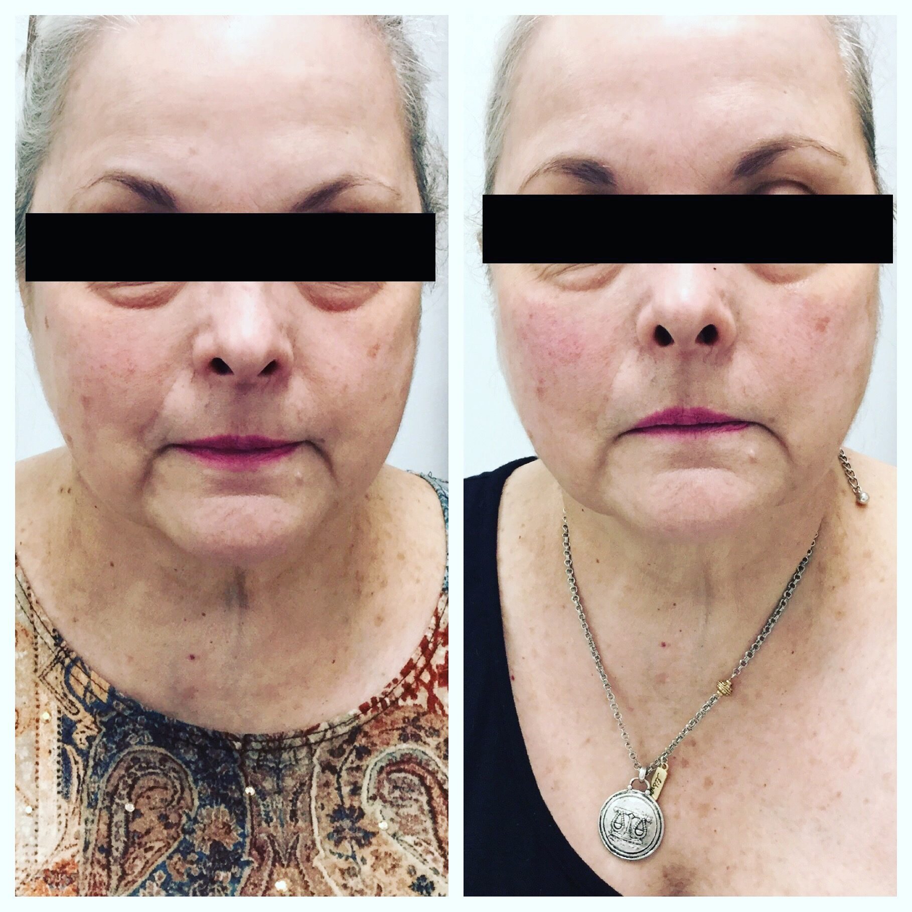 Liquid Facelift. Laugh line and cheek fill and lift with dermal filler.