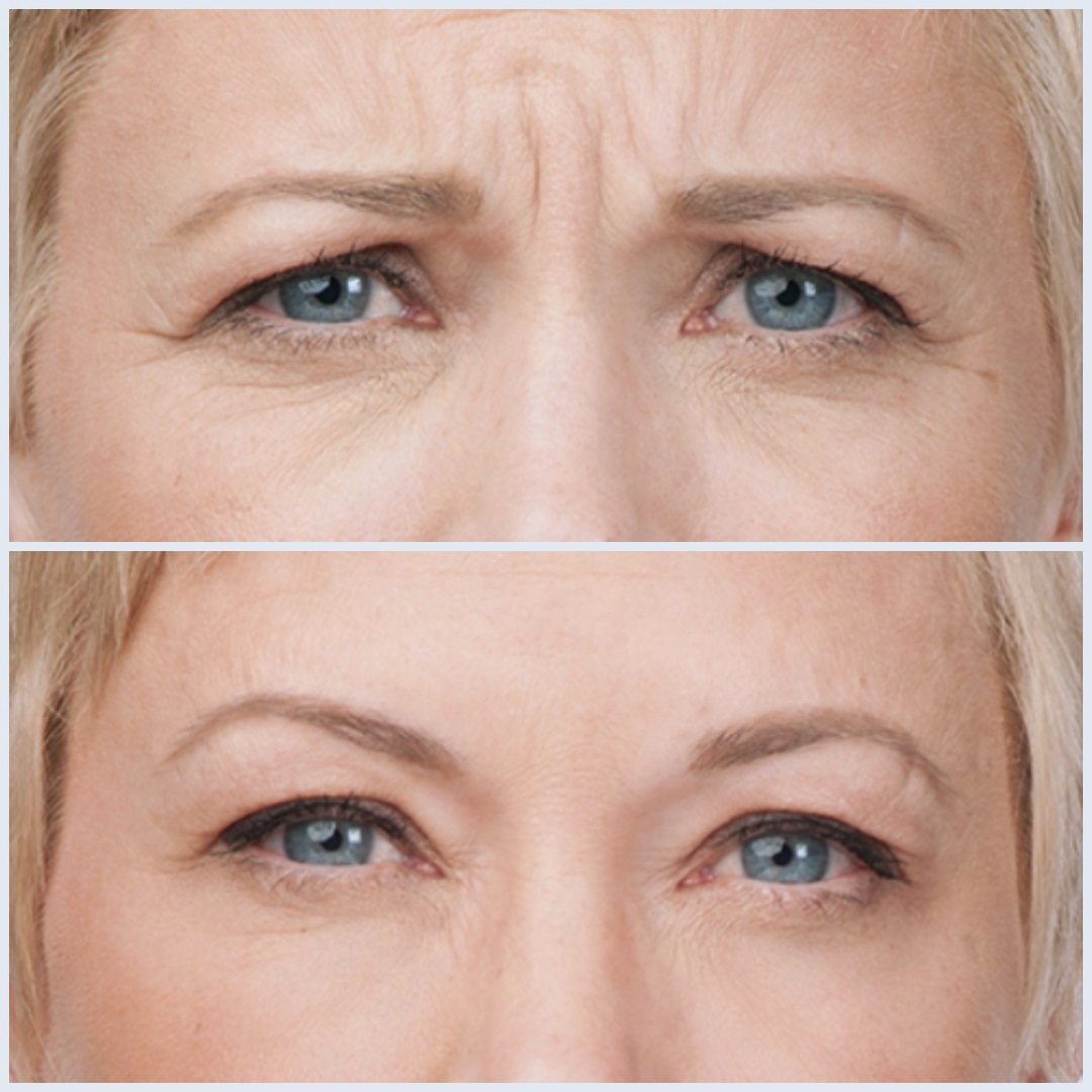 Crow's feet and frown line treatment with Botox.