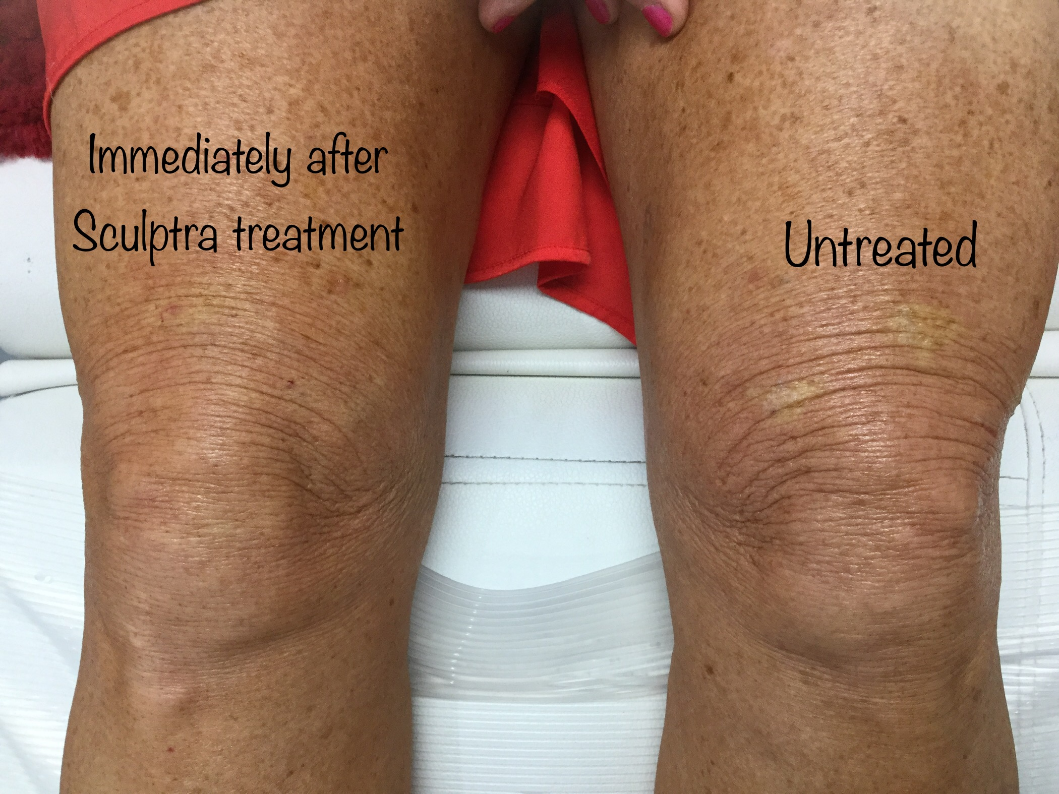Sculptra and skin tightening