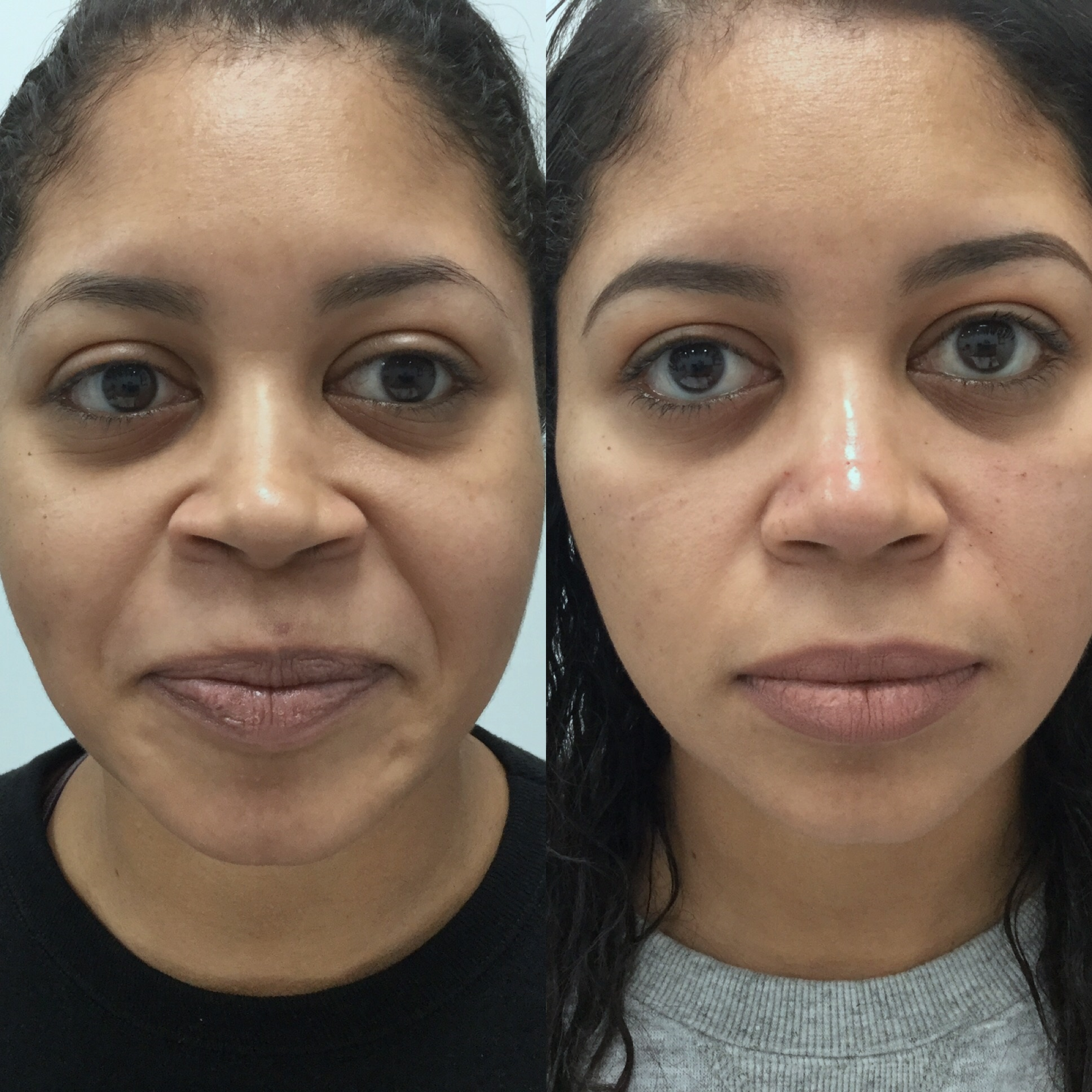 Nasolabial fold removal. Laugh line fill and lift with dermal filler.