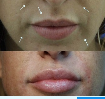 Lip augmentation and fill nasolabial lines