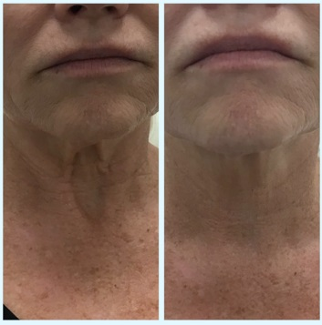 Neck lift with PDO threads