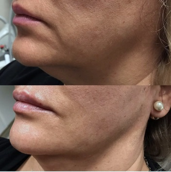 Lip augmentation and Kybella in jowls