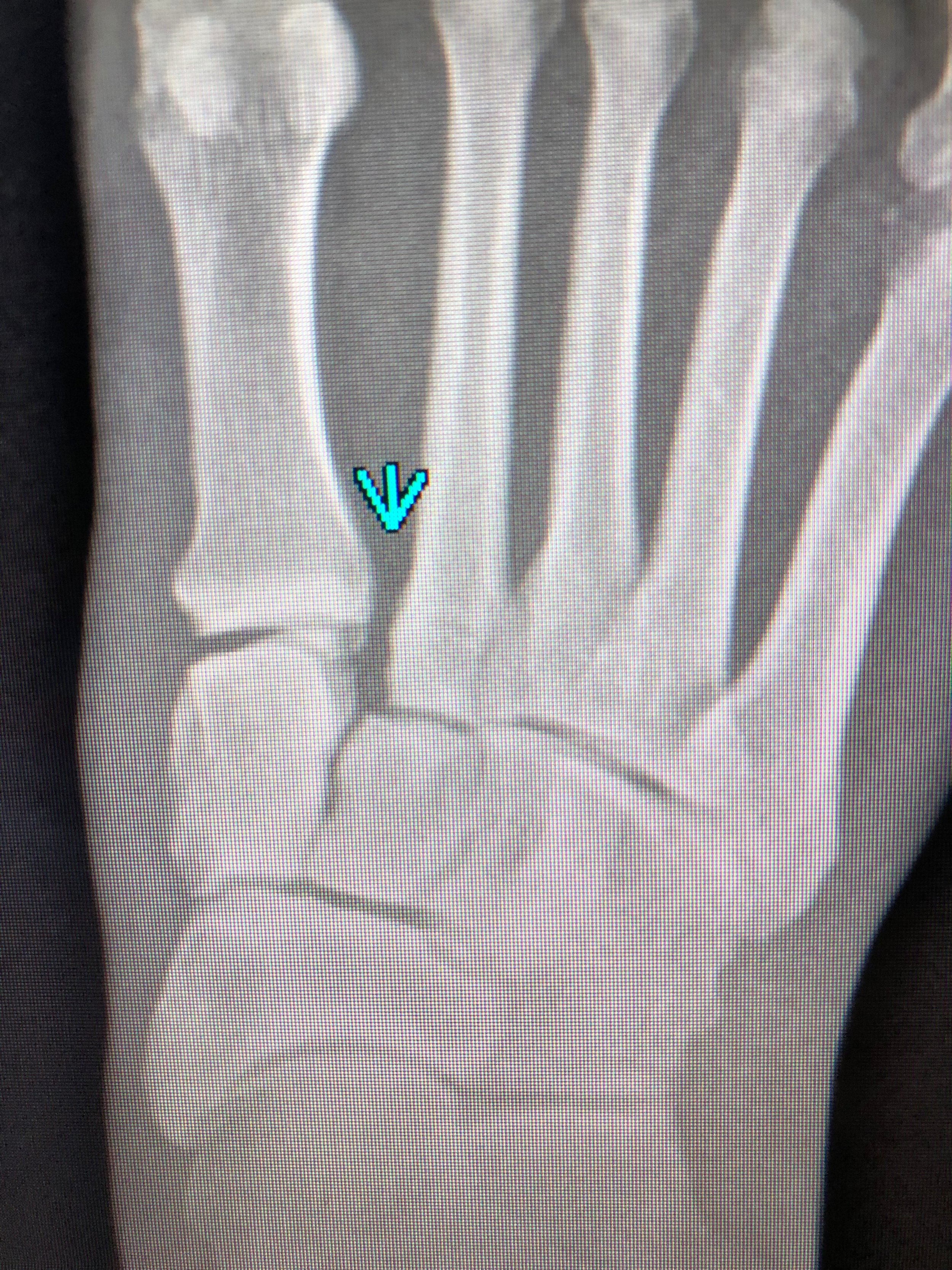 The weighted x-ray. The blue arrow indicates the Lisfranc joint and shows greater separation while weighted.