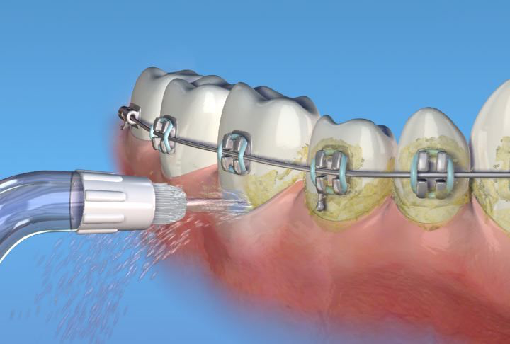 #waterpik #braces #orthodonticcare #orthodontist #coloradobraces #coloradosprings