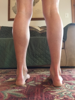 Right calf with decreased muscle mass